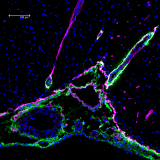 <h5>Beatrice Bedussi</h5><p>Penetration of tracer (green) into a rat brain along a newly discovered pathway alongside blood vessels. Pink: laminin stain. Blue: nuclear stain.</p>