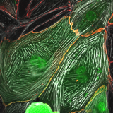 <h5>Jeffrey Kroon</h5><p>Human Umbilical Vein Endothelial Cells (HUVECs) are adenovirally transduced with GFP-tagged Trio (as shown in green). Trio is a guanine nucleotide exchange factor (GEF) for the small GTpases Rac1 and RhoG. These GTPases are in turn involved in remodeling of the actin cytoskeleton (shown in white) and are involved in regulating junctional integrity (VE-cadherin,shown in red). In this image, over-expression of Trio (green) induces short and thick actin fibers (white) and stabilizes the VE-cadherin-based junctions (red).</p>