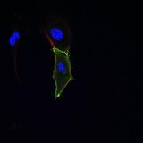 <h5>Marchien Dallinga</h5><p>Kleuring van een spheroid gemaakt van HUVECs en ingebed in een collageen gel.</p>