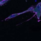 """<h5>Marchien Dallinga</h5><p>Kleuring van een spheroid gemaakt van HUVECs en ingebed in een collageen gel. Mooist zonder kanaal 3 (cd34-blauw) en in """"max"""" weergave"""". Kleuring van kanaal 2 is phalloidine (F-actin). Mooi te zien is het grillige uiterlijk van de tipcel en het herschikken van het actine skelet in de 3e cel in het vaatspruitje.</p>"""