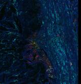 <h5>Daisy Picavet and Stefan Havik</h5><p>Een bloedvat aangedaan door atherosclerose (aderverkalking), om de plaque heen zie je dat macrofagen ook positief zijn voor lubricine (=PRG4) en dus proberen de plaque op te ruimen.DAPI (ch1) kernen, Cyaan (ch2) smooth muscle cells, Groen (ch3) PRG4/Lubricine, Rood (ch4) macrofagen. (zoom 1)</p>