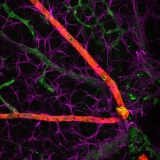 <h5>Anne-Eva van der Wijk</h5><p>Whole-mount staining of retina from a young mouse showing astrocytes wrapped tightly around the retinal vessels. Retinal vasculature was stained with an isolectin B4 probe (green) and astrocytes with an anti-GFAP antibody (purple). Arteries were stained with an anti-alpha smooth muscle actin antibody (red). Image was recorded using the confocal laser scanning microscope SP8 with a 40x objective.</p>