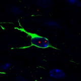 <h5>Maurik van Hal</h5><p>Confocal image of nuclear huntingtin aggregates in GFAP-positive astrocyte in a mouse brain section from the R6/2 mice - a model of Huntington's disease.</p>