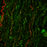 <h5>Samaneh Ghazanfari</h5><p>Fluorescent micrograph of a porcine carotid artery stained with elastin (red) and type I collagen (green).</p>