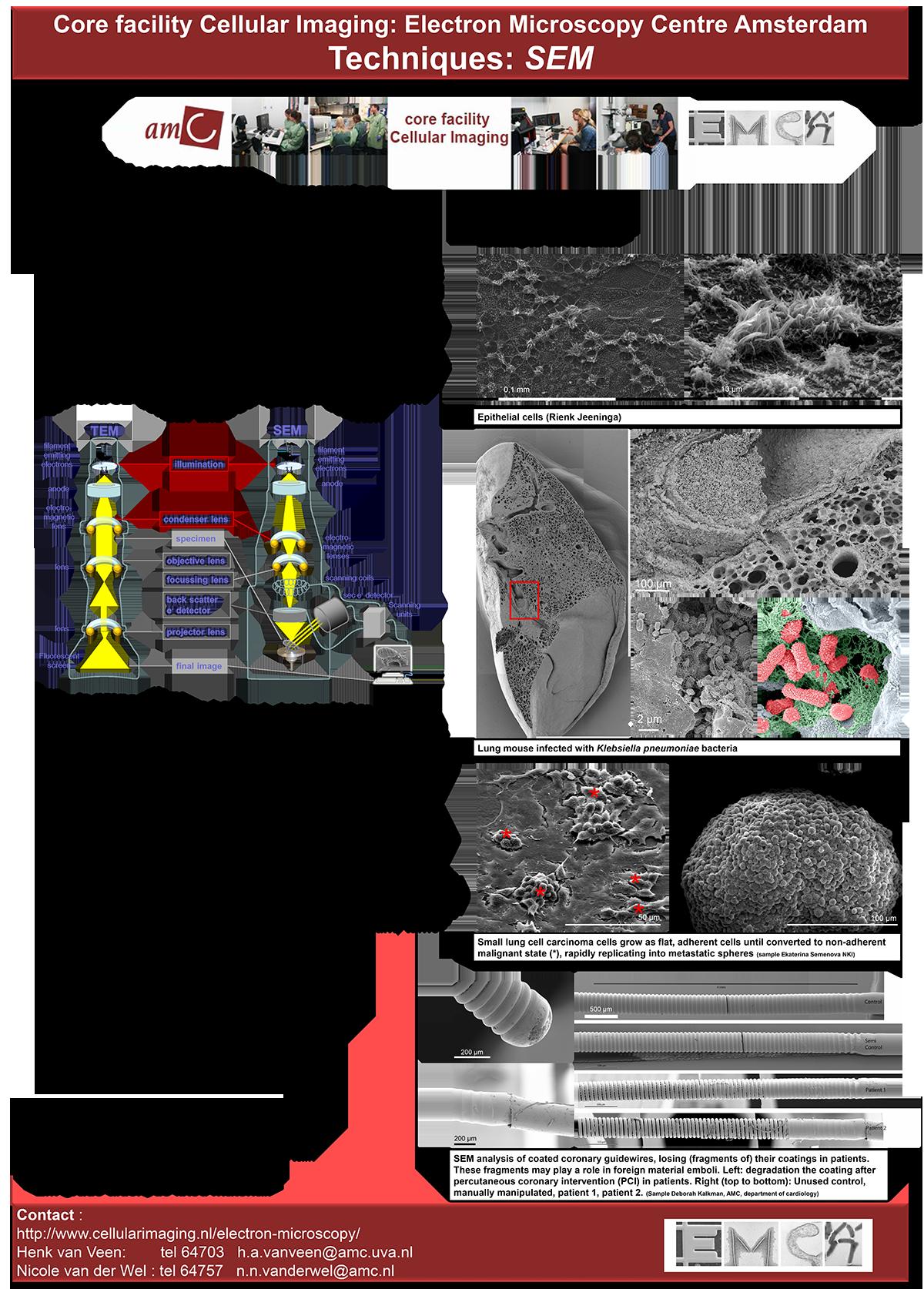 SEM (scanning electron microscope) - Posts | Facebook | 1674x1200
